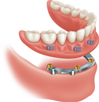 bar-attachment-removable-implant